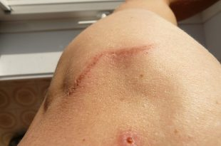 scar-58610_640